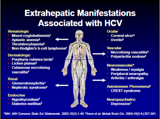 Extra-hepatic manifestations of Hepatitis C