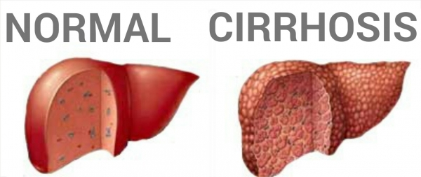 Normal versus Cirrhotic Liver