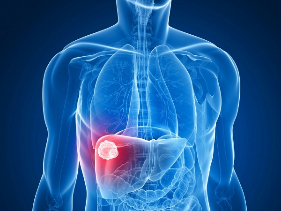 Liver Cancer (HCC) Treatment Options